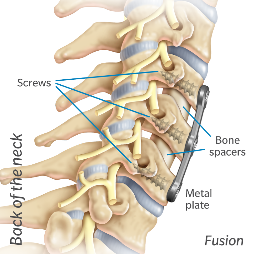Illustrated diagram of back of the neck with a metal plate and bone spacers.