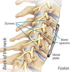 neck fusion with spacers and a plate