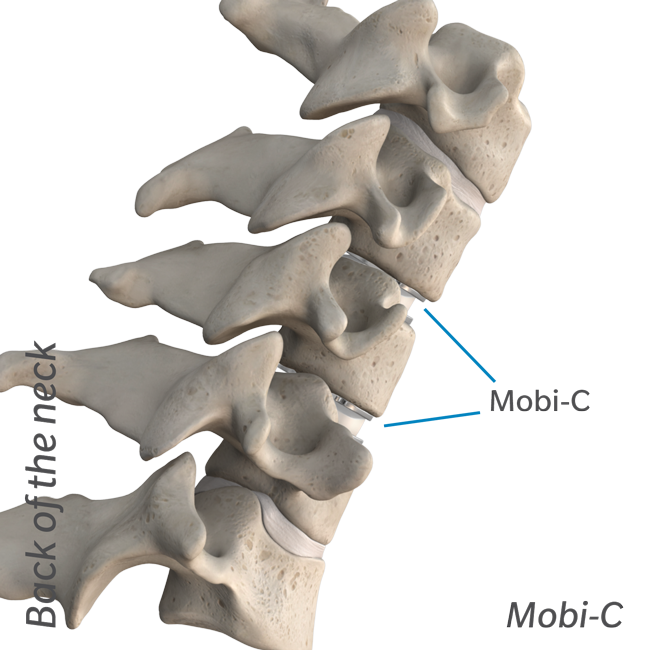 Illustrated diagram of back of the neck with Mobi-C.
