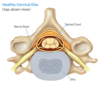 top down healthy cervical disc