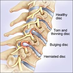 Cervical Disc Herniation Treatment Disc Bulge
